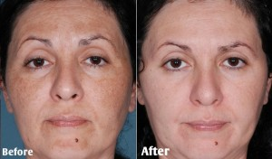 Tẩy da chết hóa học – Phương pháp làm sạch da có gì tốt?