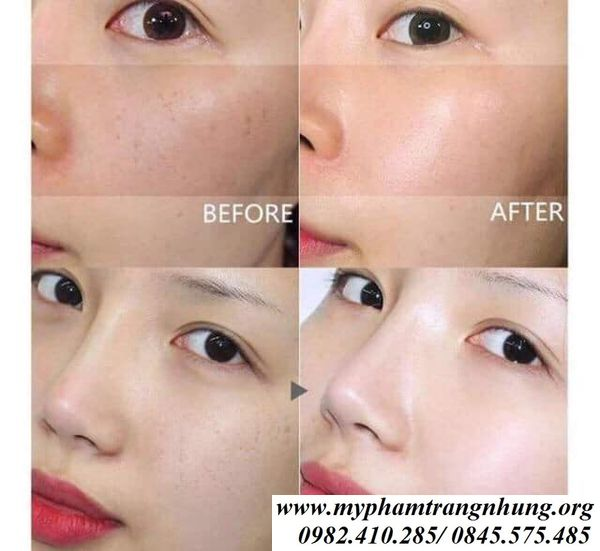 Nuoc-Hoa-Hong-Dongsung-Rannce-Skin-130ml-7_result
