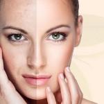 8 điều cần làm khi dùng phải mỹ phẩm chăm sóc da kém chất lượng